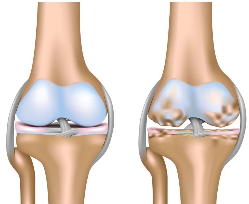 dureri articulare la încheietura mâinii drepte când articulațiile rănesc la intemperii