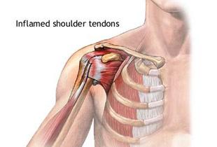 leziuni musculare ale articulației umărului tratamentul articulațiilor genunchiului în Arkhangelsk