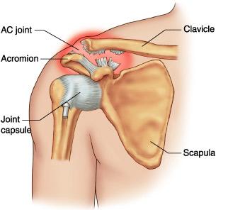 dureri articulare cauze și simptome