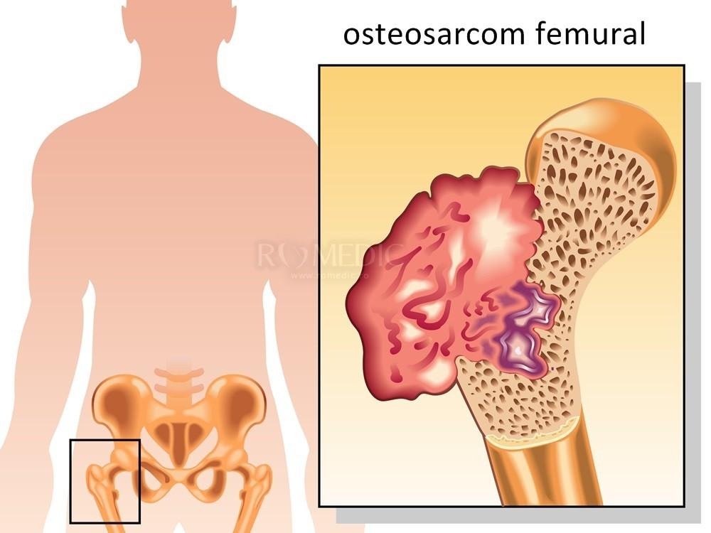 menovasină pentru durere în articulația șoldului
