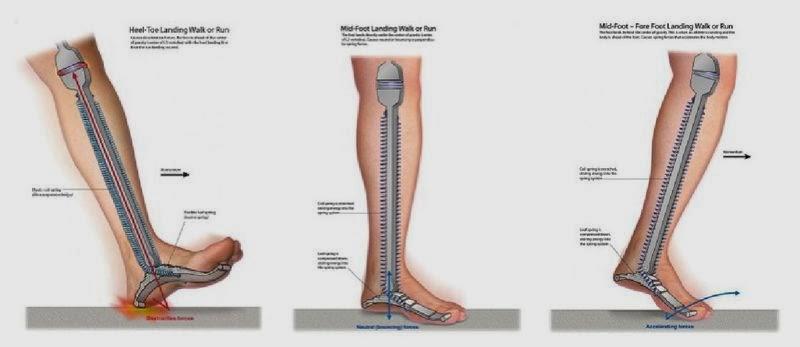 nu pot calca pe picior doare o articulație tratamentul unei luxații obișnuite a articulației umărului