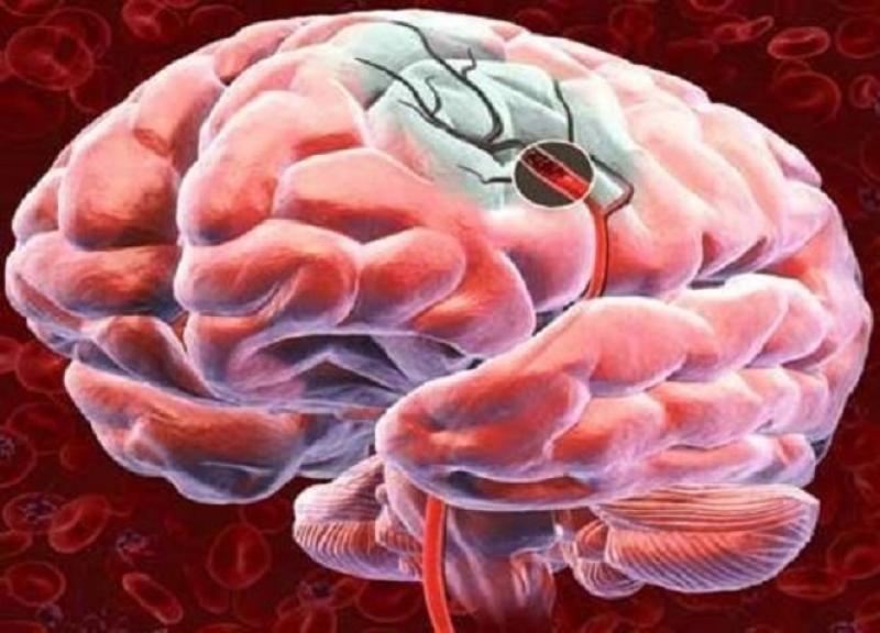 Preparate pentru îmbunătățirea circulației cerebrale și a memoriei în osteochondroza cervicală