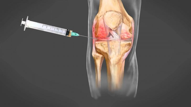 Refacerea funcției genunchiului, Artroplastia cu proteza de genunchi