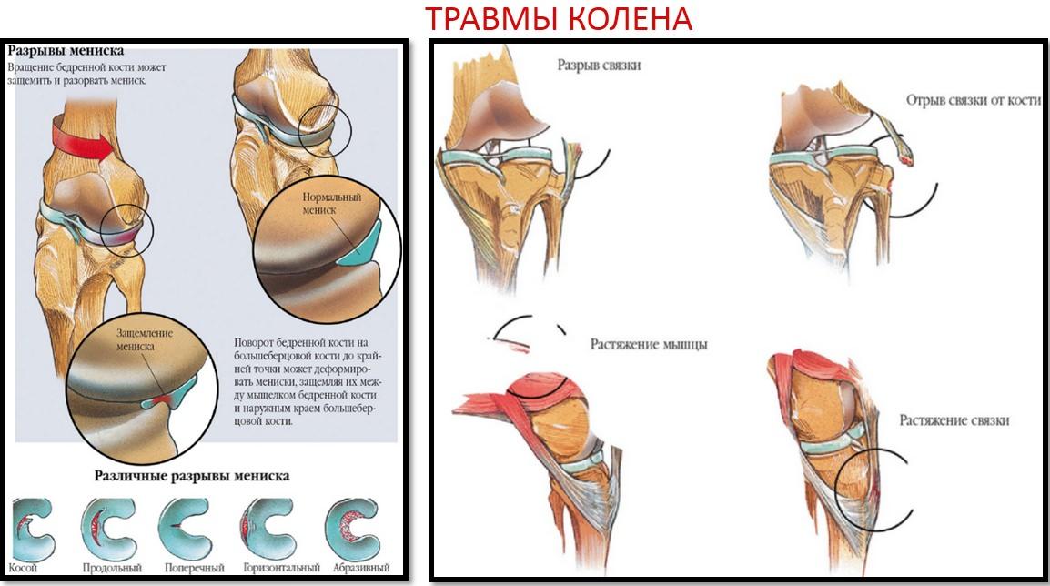 Răni articulațiile pelvine atunci când ghemuit