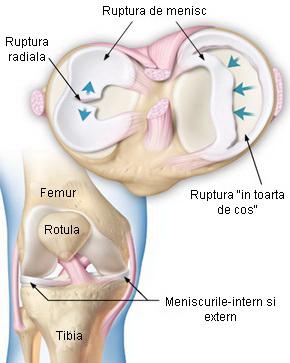 Ruptura (leziunea) de menisc
