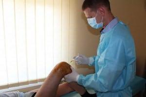 tratamentul articulațiilor de ridicare plasmatică