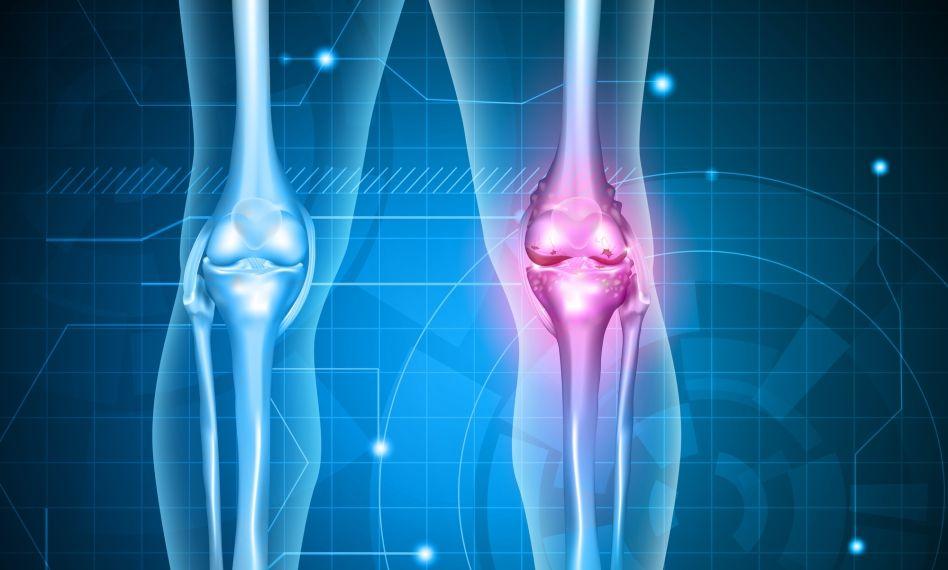UHF cu artroză cu perie ,poate exista dureri de spate dintr-un pat prost Tratamentul cu artroza UHF